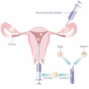 fertilizarea-in-vitro-diagnostic (3)
